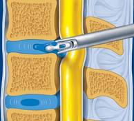 Ablation-hernie-microchirurgie